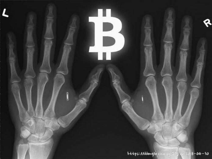 xray-bitcoin.jpg